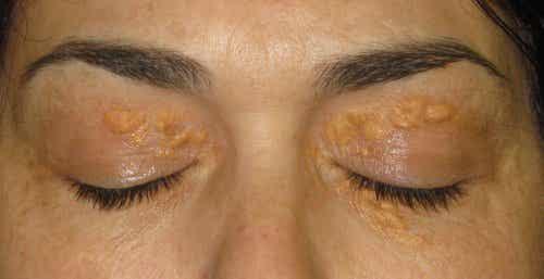 Xanthelasma: Those White Spots Around the Eyes