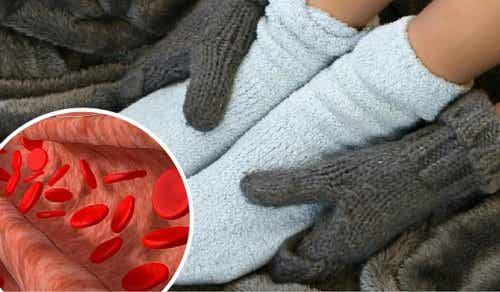 Remedies to Improve Circulation and Relieve Inflammation