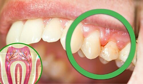 6 Reasons Why You Could Be Experiencing Tooth Pain
