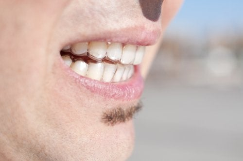 Man with bruxism