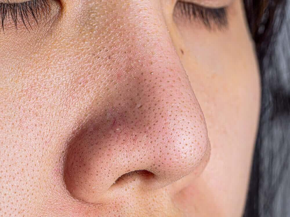 A woman with blackheads on her nose.