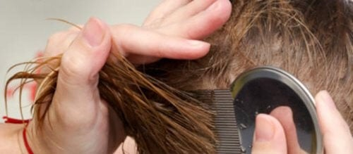 7 Natural Ways to Get Rid of Head Lice