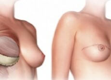 what you should know about a mastectomy