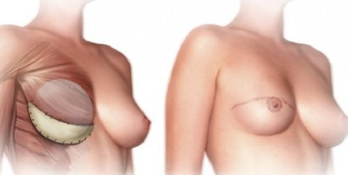 What Should You Know Before a Mastectomy?