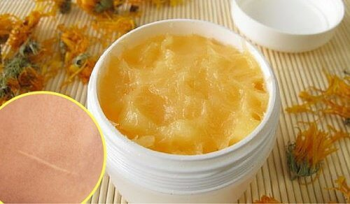 A Natural Cream to Heal Cuts and Scars