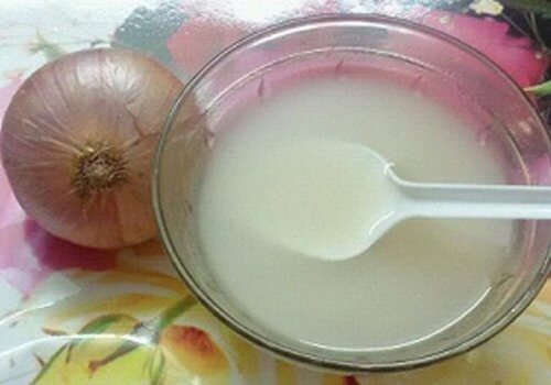 Remove Foot Calluses with This Onion and White Vinegar Treatment