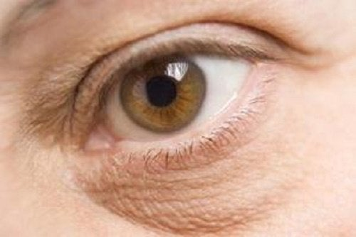 bags under the eyes, one of the negative effects of stress on your appearance