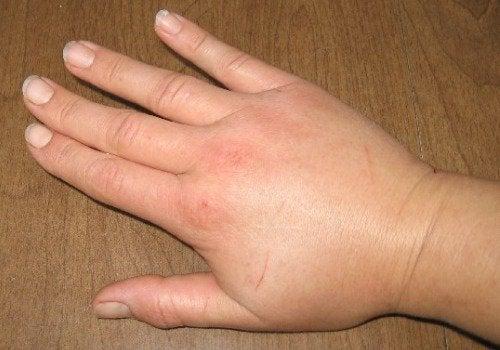 A swollen hand.