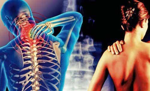 Cervicobrachial Syndrome, a Painful Neck and Arms