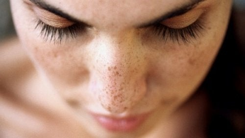 6 Natural Remedies to Get Rid of Black Spots on Your Face