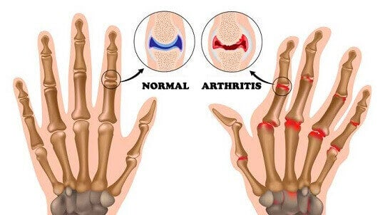 Normal joints versus joints that are affected by arthritis