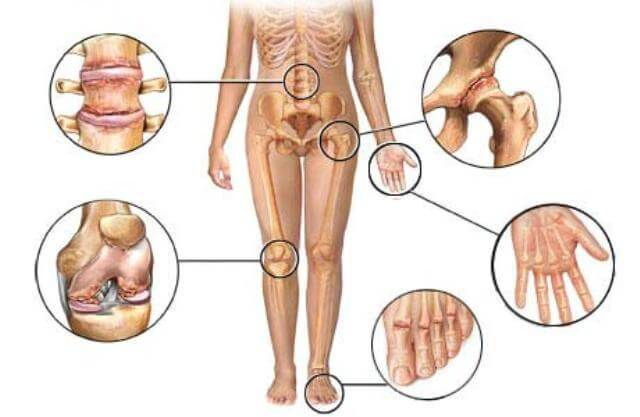 Different joints affected by arthritis