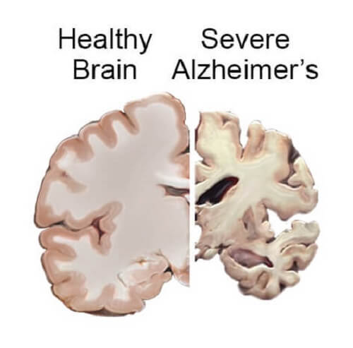 Erly detection of Alzheimer's might save the brain