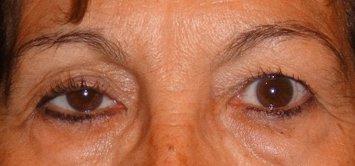 Roikkuvat silmäluomet