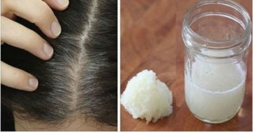 Onion and Honey Remedy to Reduce the Risk of Hair Loss