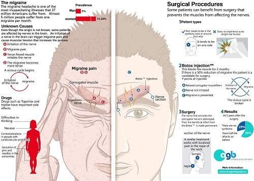 Men suffering from migraines
