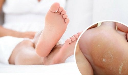 Remove Foot Calluses with These Home Remedies