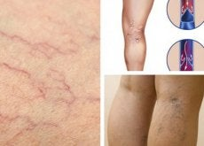 Enjoy Better Vein Health with These Changes