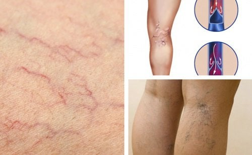 Vein Health: Improve It with These Changes