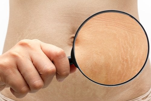 distinguish the stage of your stretch marks