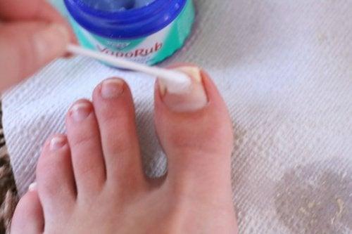 4-toenails