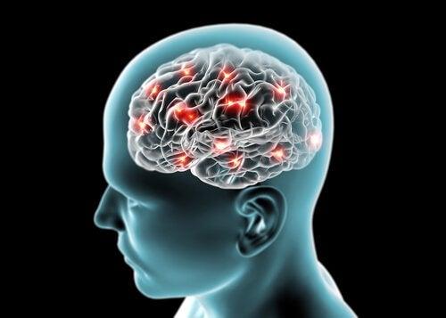 5-brain