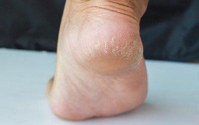 5-cracked-heels
