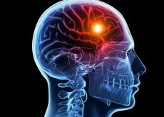8 warnings of cerebral stroke
