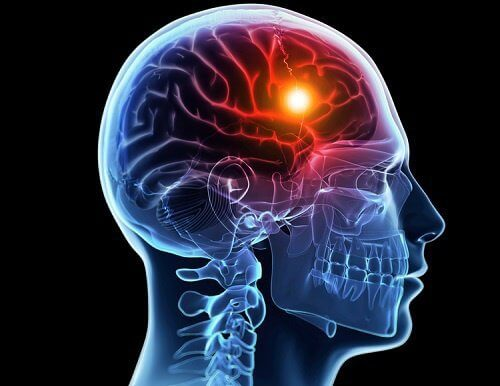 8 Warnings From Your Body Before A Cerebral Stroke