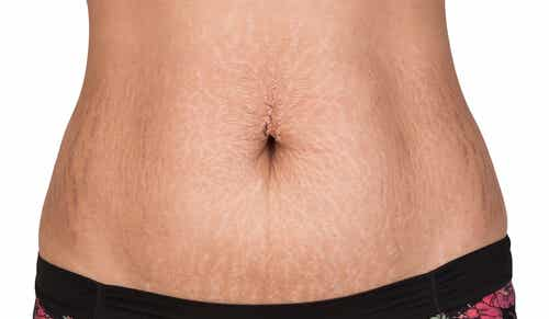 How to Remove Stretch Marks Naturally: 2 Easy Ways