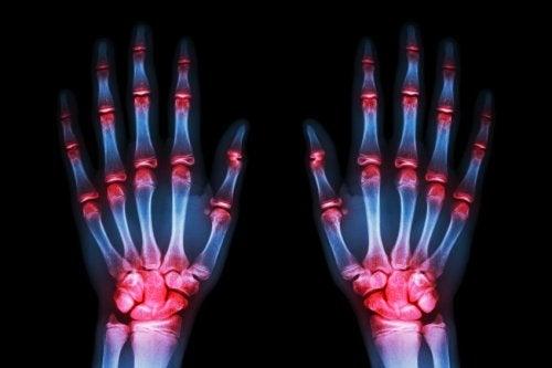 퇴행성 관절염을 치료하는 의료 기술의 발달