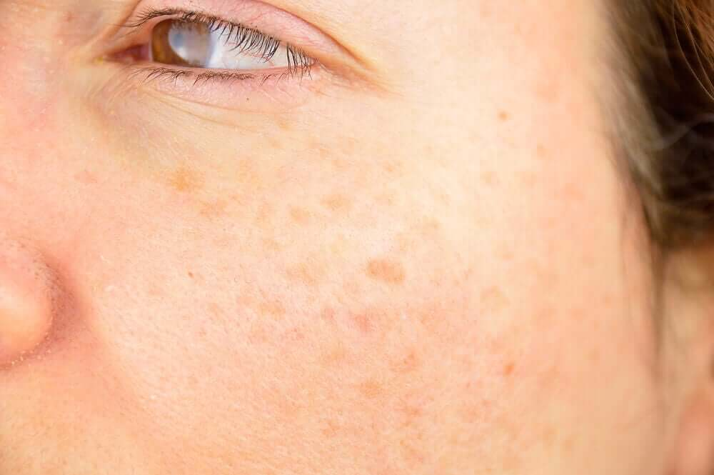 Dark spots on the face.