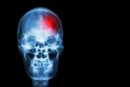 Signs of a Stroke You Should Know About