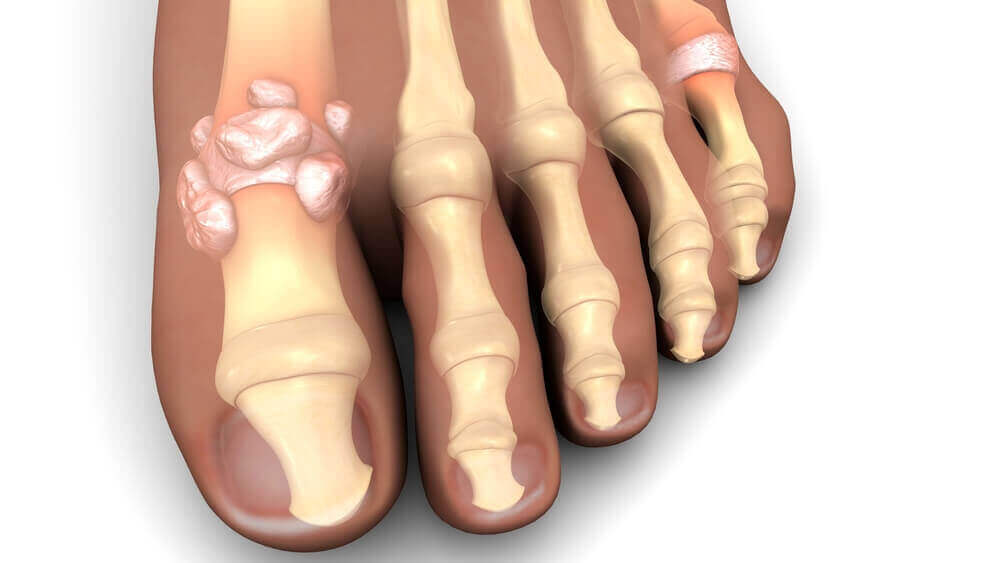 Nerve pain may be due to gout.