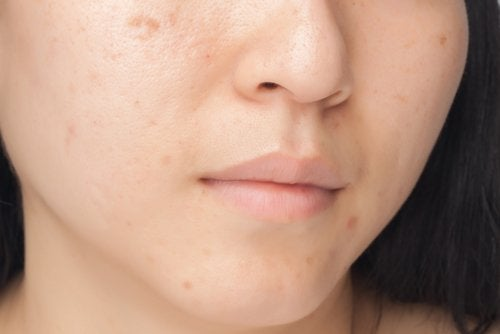 eliminate dark spots on the face
