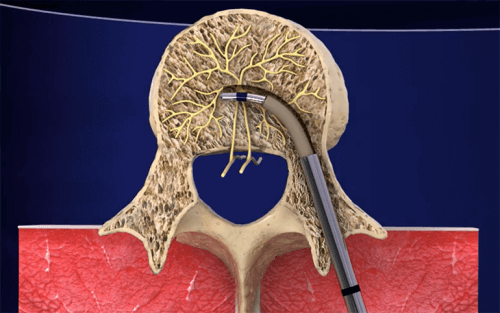 New procedures for chronic low back pain may be effective.