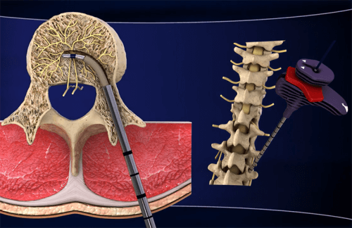 Discover the New Treatment for Chronic Lower Back Pain