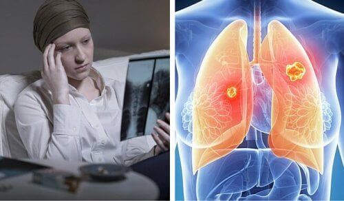 Lung Cancer in Women is Much More Deadly