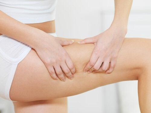 Woman pinching cellulite on her legs solution for cellulite