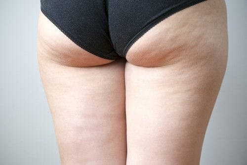 Woman's buttocks and backside with cellulite solution for cellulite