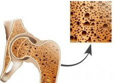 Fight Osteoporosis with these Natural Remedies