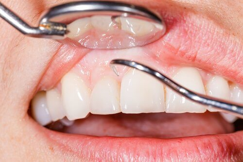 7 Natural Solutions to Relieve Swollen Gums