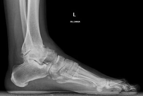 Ankle osteoarthritis symptoms at x-ray