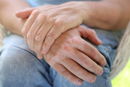 Natural Remedies for Vitiligo