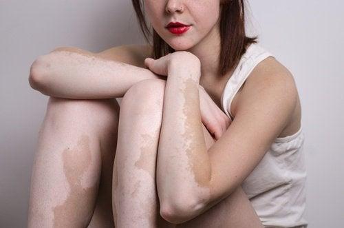 2-girl-with-vitiligo