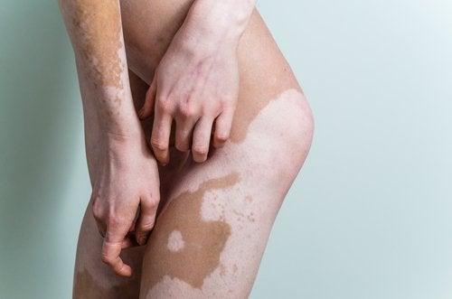 3-vitiligo