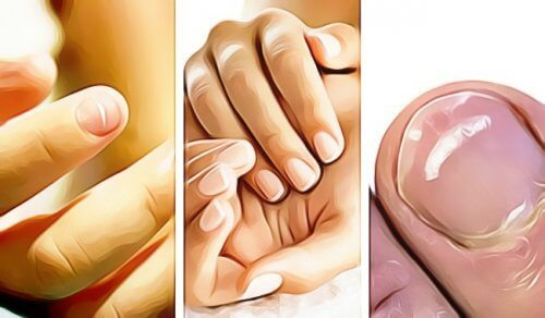 Five Ways Your Fingernails Show You Something's Wrong With Your Health