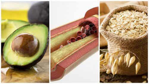 8 Foods to Manage High Triglyceride Levels