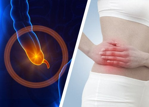 Appendicitis: Signs and Symptoms