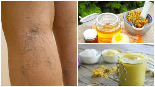 How to Use Arnica Ointment to Treat Varicose Veins
